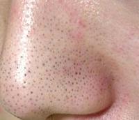 顔のくすみに効く化粧品!原因を改善シミ対策の美肌クリーム。