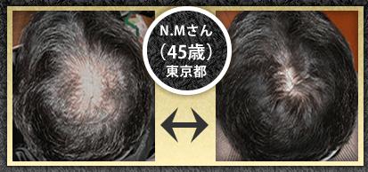 男性育毛剤ザスカルプ5.0Cの口コミ!細い髪を太くする効果で人気。
