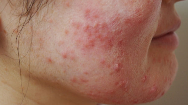 治らない顔の脂漏性皮膚炎にはオゾンと石鹸で対策しましょう